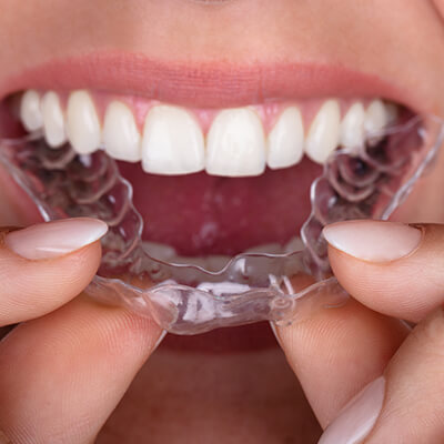 A close up of a young woman placing clear aligners into her mouth